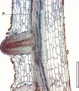 Cross Sections Lupinus Stem