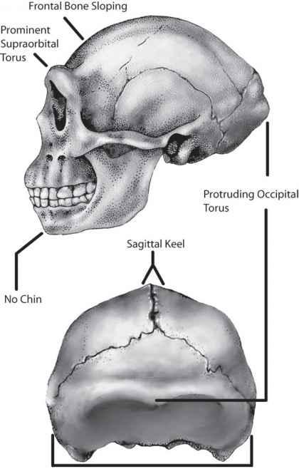 Occipital